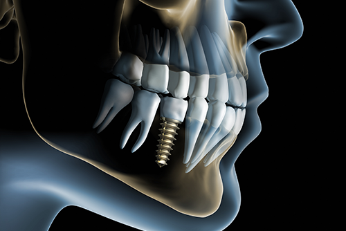 Spring TX Dentist Endodontic Therapy